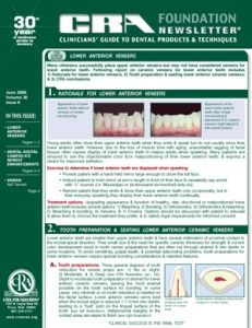 Lower Anterior Veneers, Digital Camera Kit- June 2006 Volume 30 Issue 6 - 200606 - Dental Reports