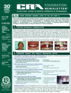 Upper Anterior Veneers, Dental Practice Tool Kit- March 2006 Volume 30 Issue 3 - 200603 - Dental Reports